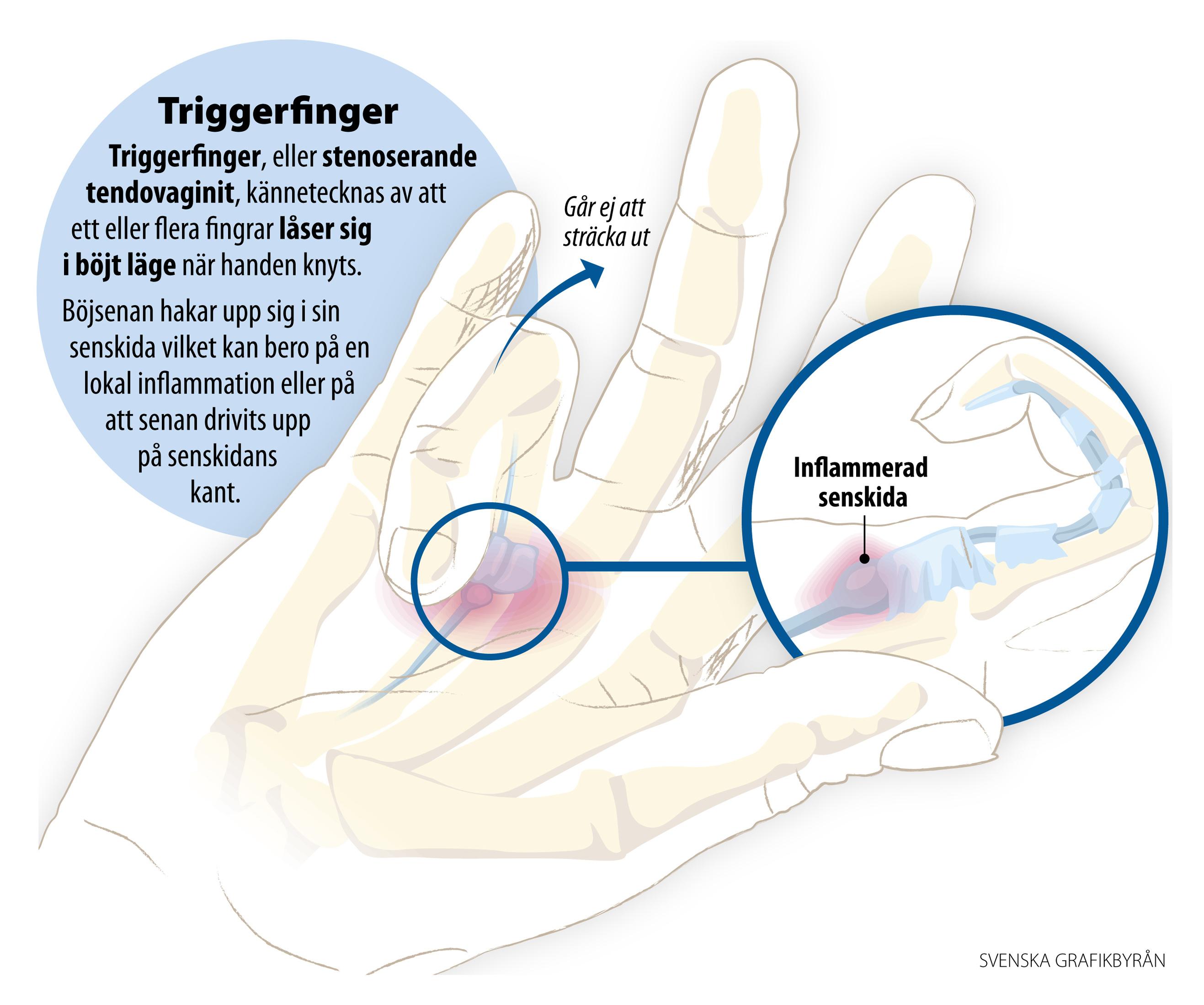triggerfinger behandling