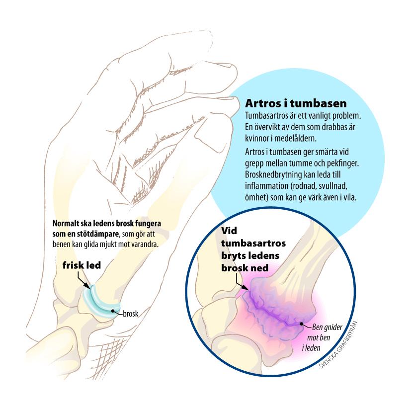 artros i handen